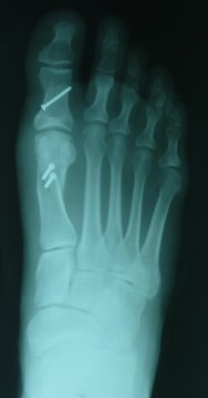 X-ray of a surgically corrected foot